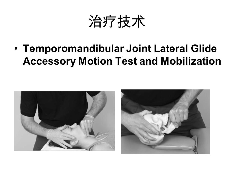 治疗技术 Temporomandibular Joint Lateral Glide Accessory Motion Test and Mobilization