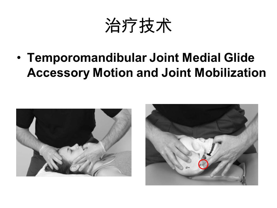 治疗技术 Temporomandibular Joint Medial Glide Accessory Motion and Joint Mobilization