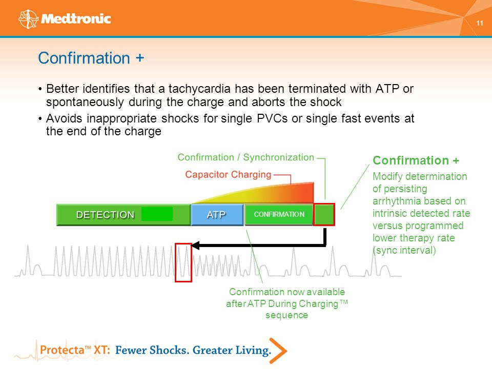 Confirmation now available after ATP During Charging™ sequence