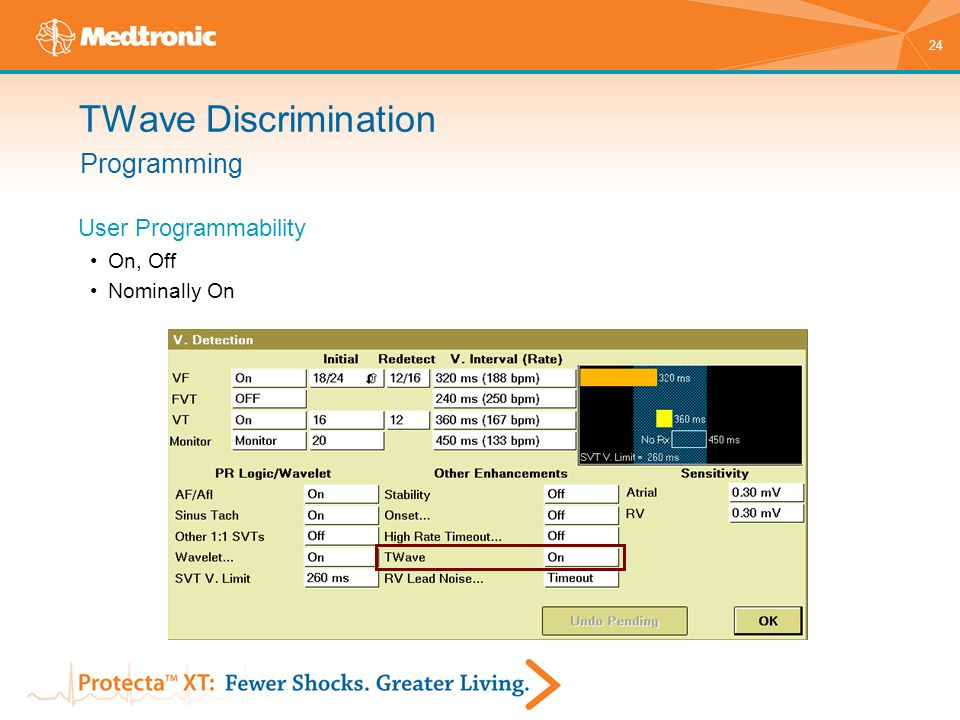 TWave Discrimination Programming User Programmability On, Off