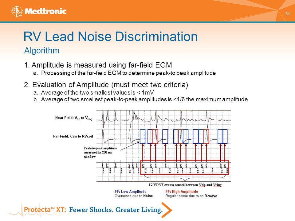 RV Lead Noise Discrimination