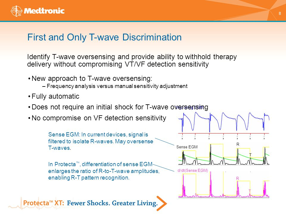 First and Only T-wave Discrimination Identify T-wave oversensing and provide ability to withhold therapy delivery without compromising VT/VF detection sensitivity