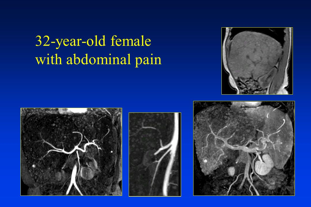 32-year-old female with abdominal pain