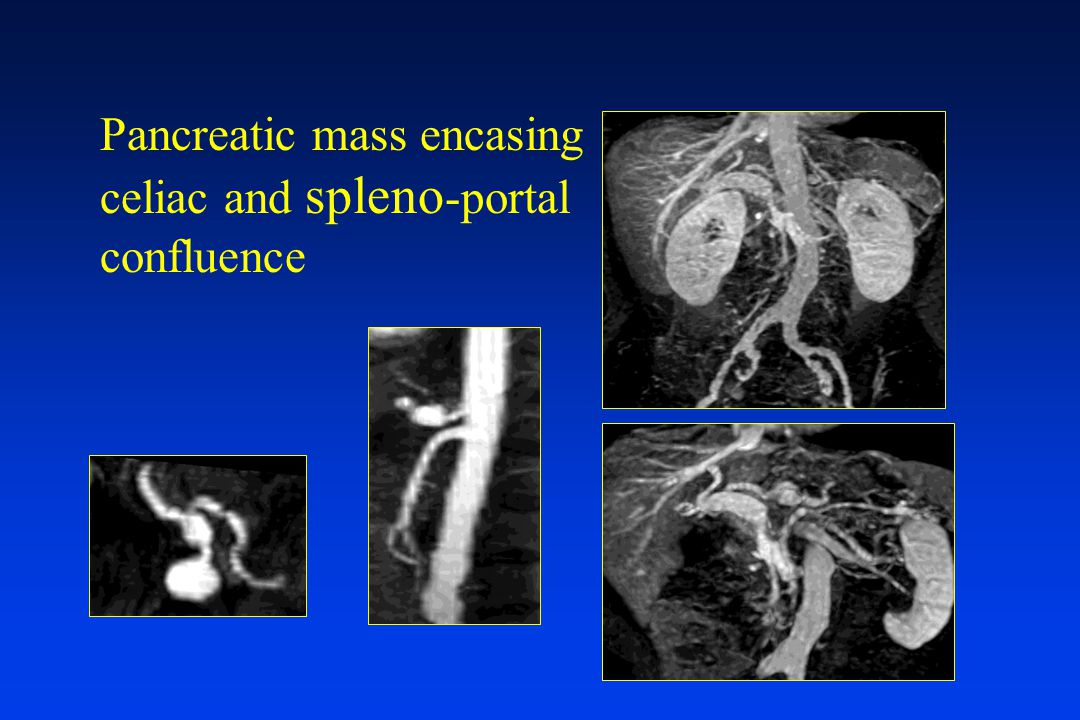 Pancreatic mass encasing celiac and spleno-portal confluence