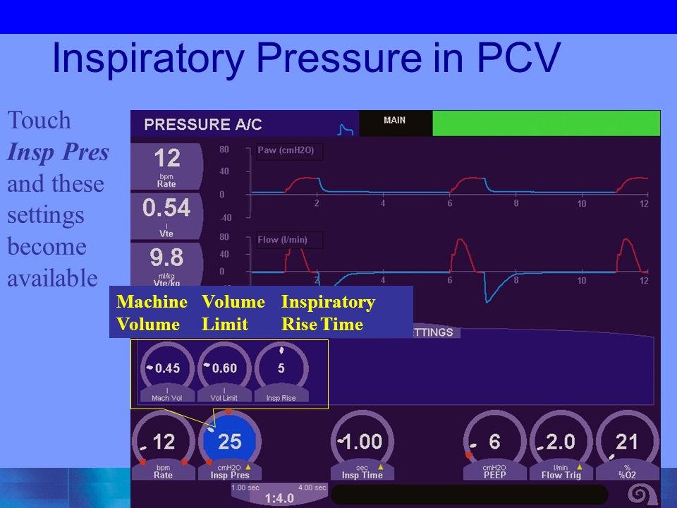Inspiratory Pressure in PCV