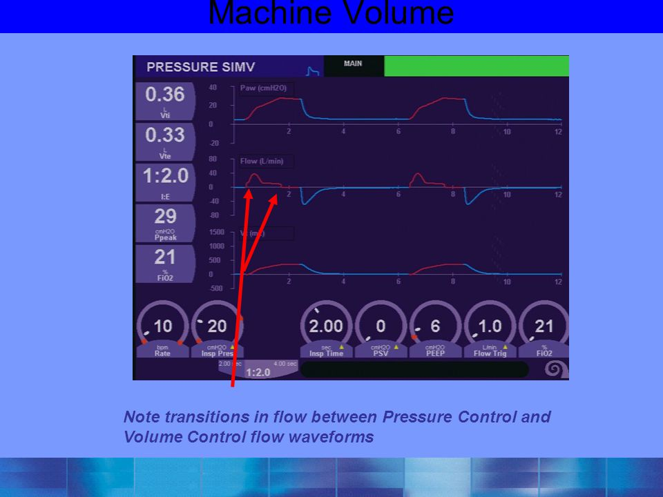 Machine Volume Note transitions in flow between Pressure Control and Volume Control flow waveforms