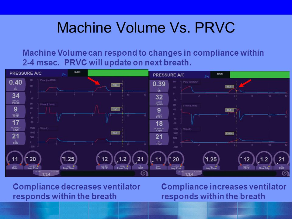 Machine Volume Vs. PRVC Machine Volume can respond to changes in compliance within 2-4 msec. PRVC will update on next breath.