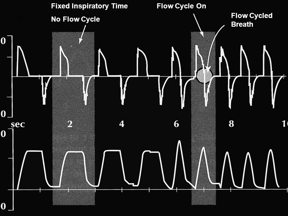 Fixed Inspiratory Time