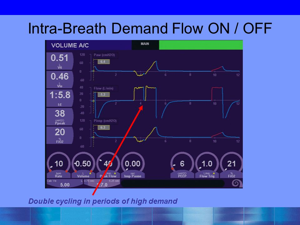 Intra-Breath Demand Flow ON / OFF