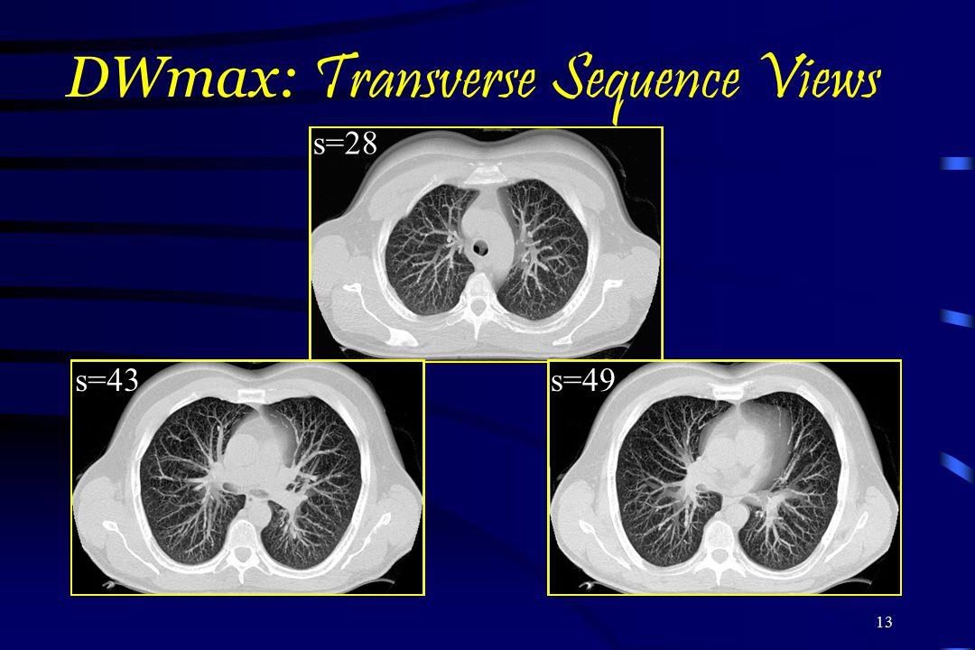 DWmax: Transverse Sequence Views