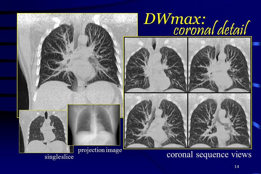 coronal detail DWmax: coronal sequence views projection image