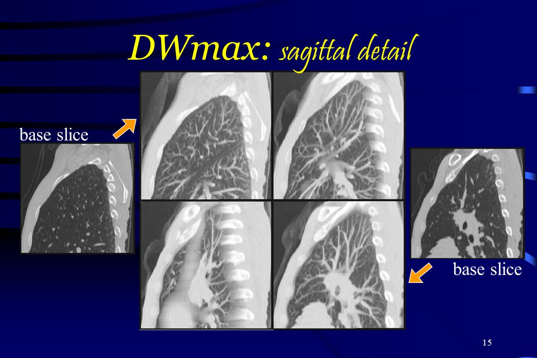 DWmax: sagittal detail