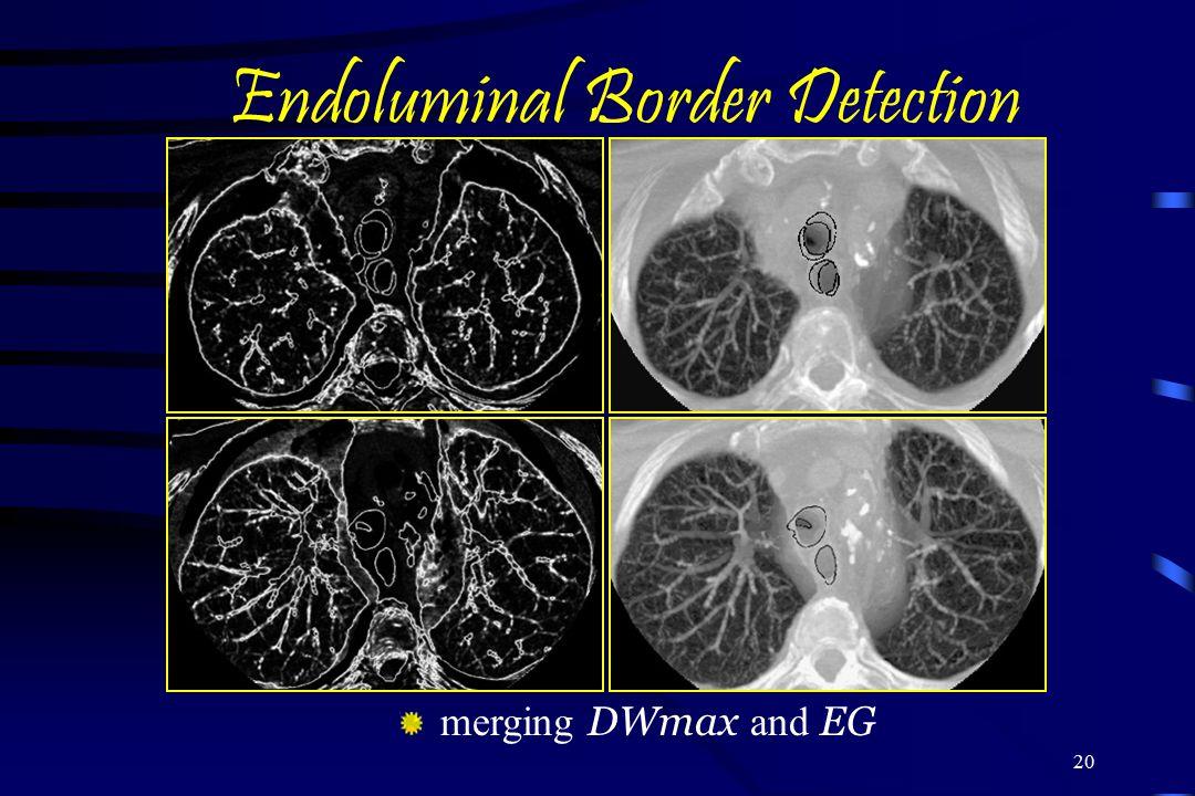 Endoluminal Border Detection