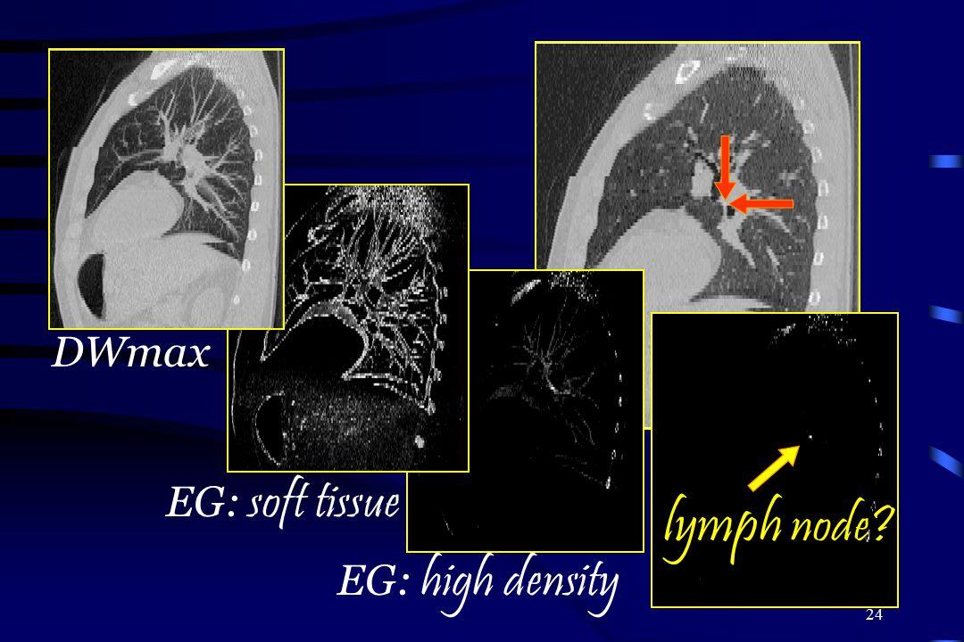DWmax EG: soft tissue lymph node EG: high density