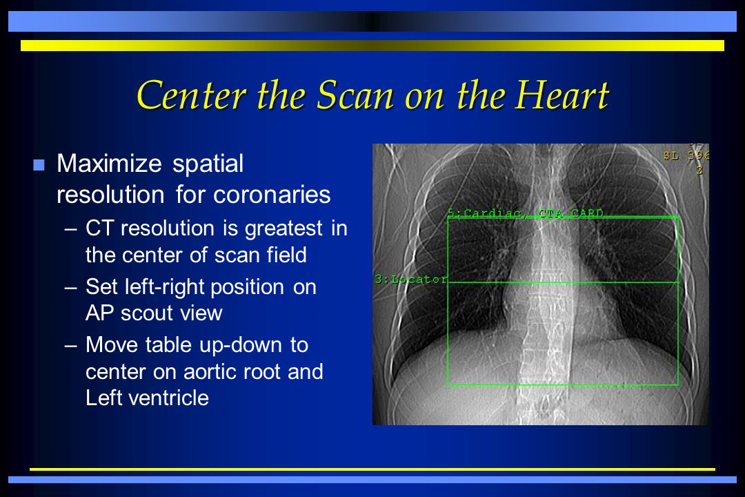 Center the Scan on the Heart