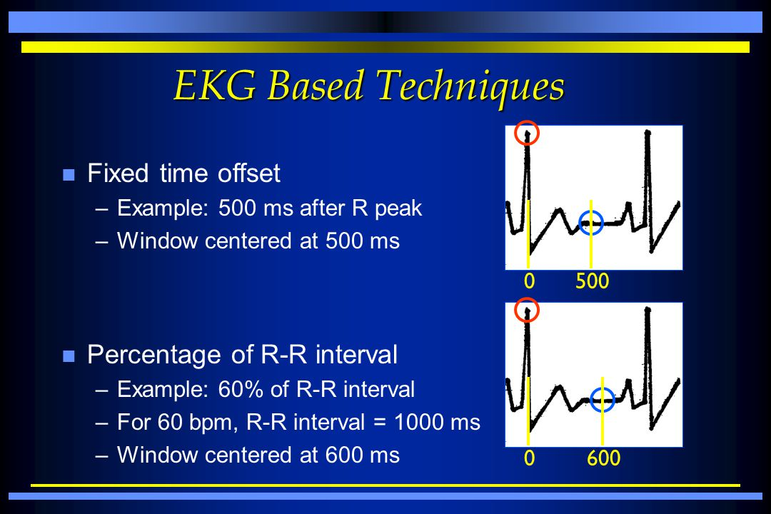 EKG Based Techniques Fixed time offset Percentage of R-R interval
