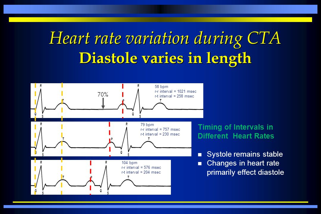 Heart rate variation during CTA Diastole varies in length
