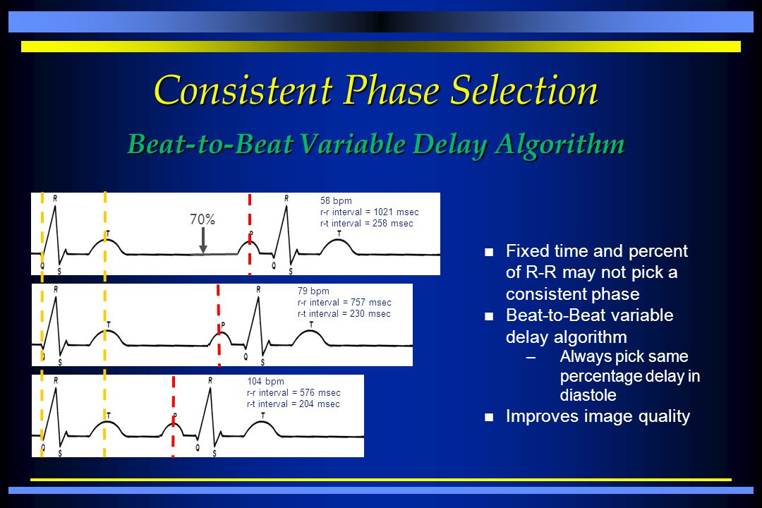Consistent Phase Selection Beat-to-Beat Variable Delay Algorithm