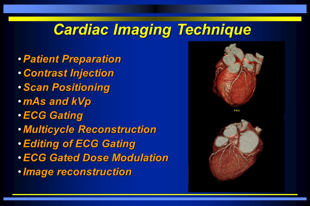 Cardiac Imaging Technique