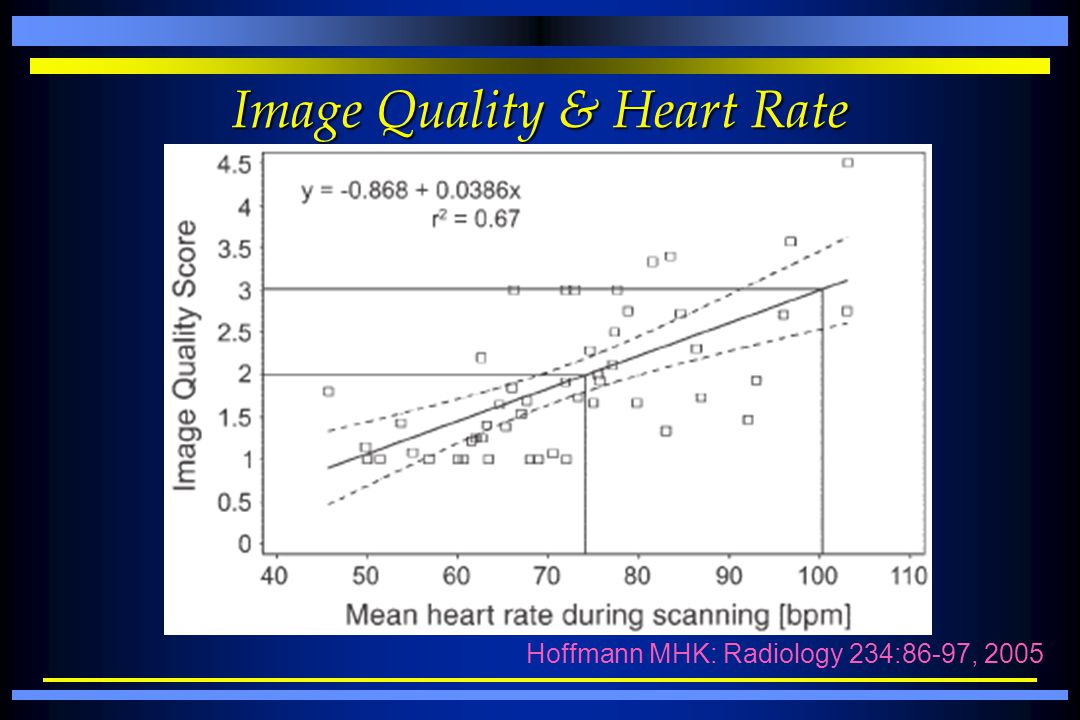 Image Quality & Heart Rate