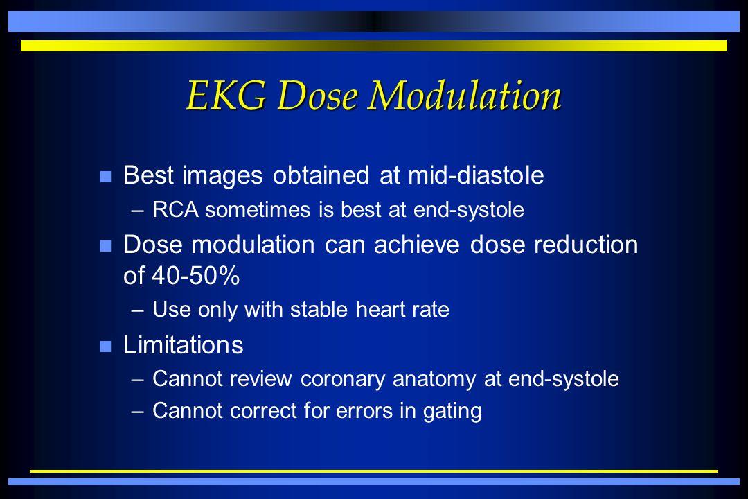 EKG Dose Modulation Best images obtained at mid-diastole