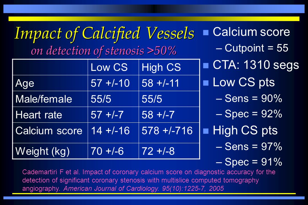 Impact of Calcified Vessels on detection of stenosis >50%