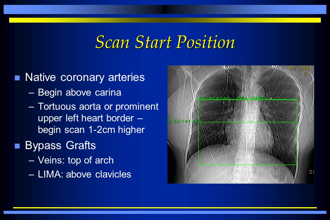 Scan Start Position Native coronary arteries Bypass Grafts