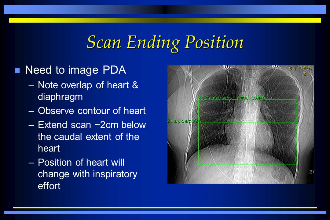 Scan Ending Position Need to image PDA