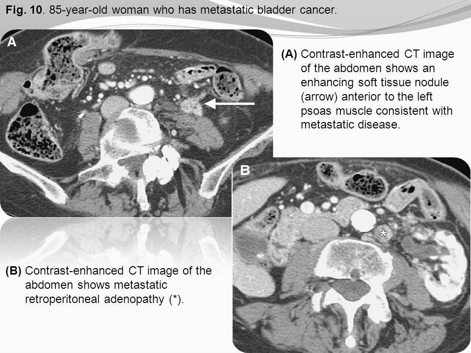 Fig. 10. 85-year-old woman who has metastatic bladder cancer.