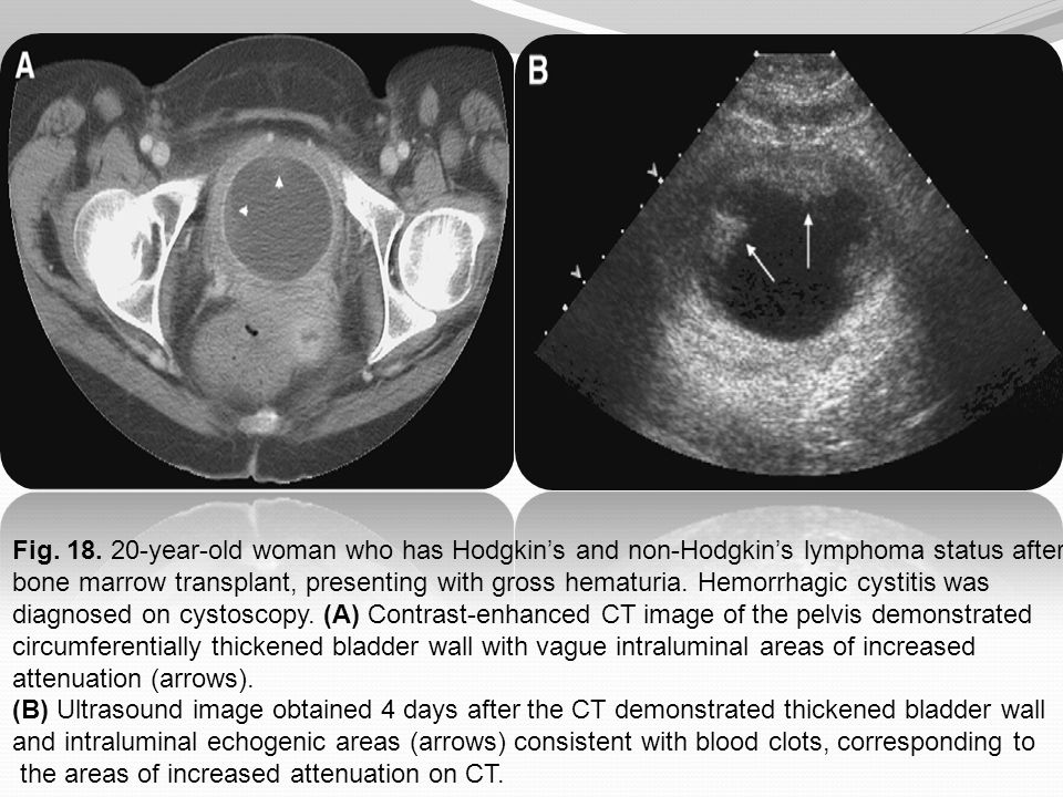 Fig. 18. 20-year-old woman who has Hodgkin's and non-Hodgkin's lymphoma status after bone marrow transplant, presenting with gross hematuria. Hemorrhagic cystitis was diagnosed on cystoscopy. (A) Contrast-enhanced CT image of the pelvis demonstrated