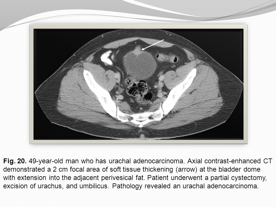 Fig. 20. 49-year-old man who has urachal adenocarcinoma