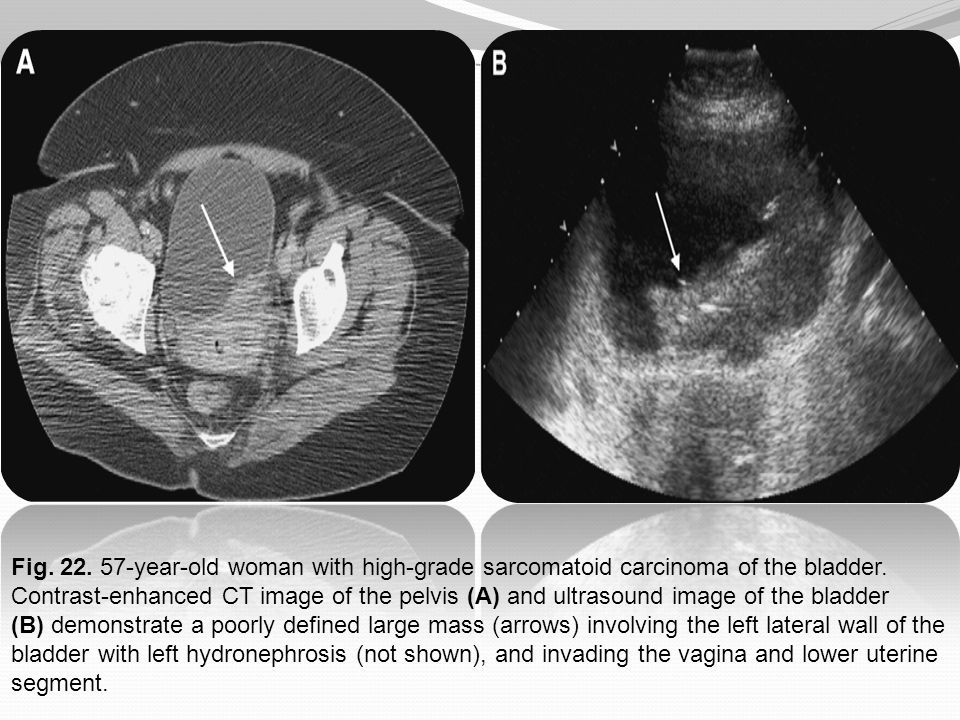 Fig. 22. 57-year-old woman with high-grade sarcomatoid carcinoma of the bladder. Contrast-enhanced CT image of the pelvis (A) and ultrasound image of the bladder