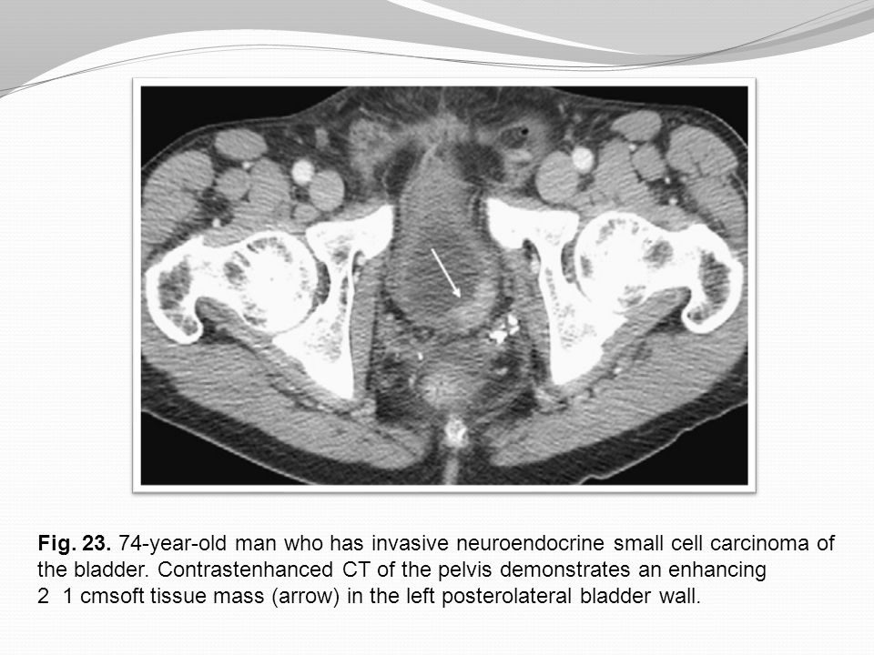 Fig. 23. 74-year-old man who has invasive neuroendocrine small cell carcinoma of the bladder. Contrastenhanced CT of the pelvis demonstrates an enhancing