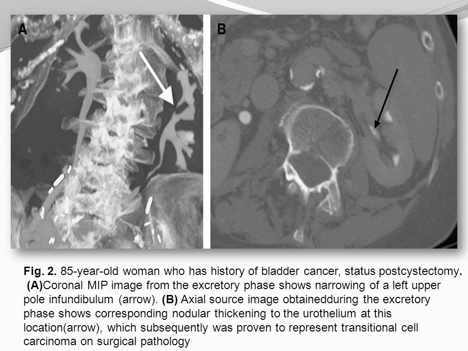 Fig. 2. 85-year-old woman who has history of bladder cancer, status postcystectomy.