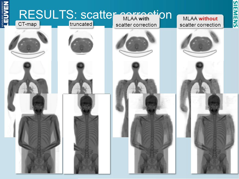 RESULTS: scatter correction
