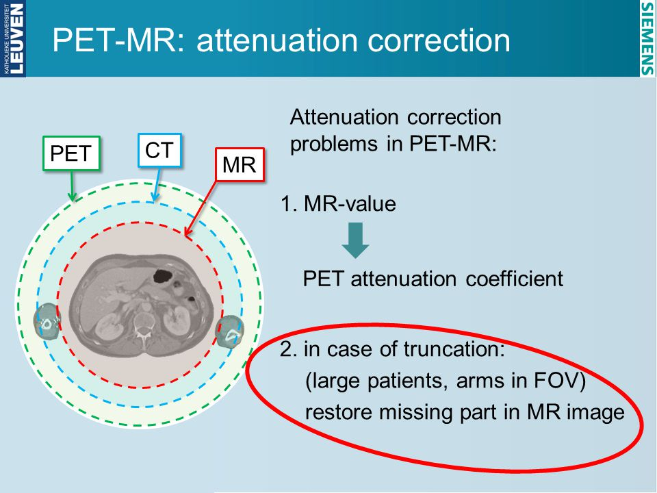 PET-MR: attenuation correction