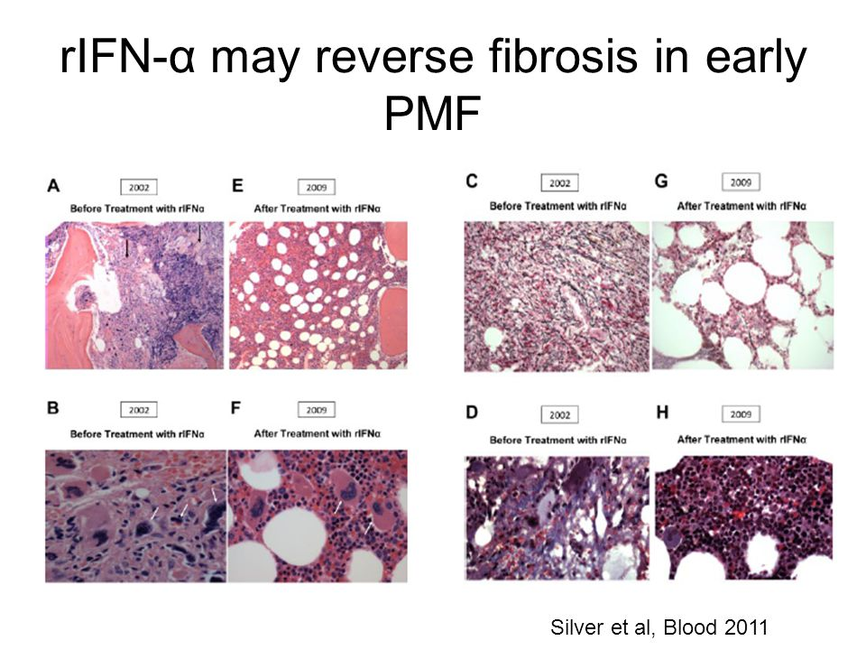 rIFN-α may reverse fibrosis in early PMF