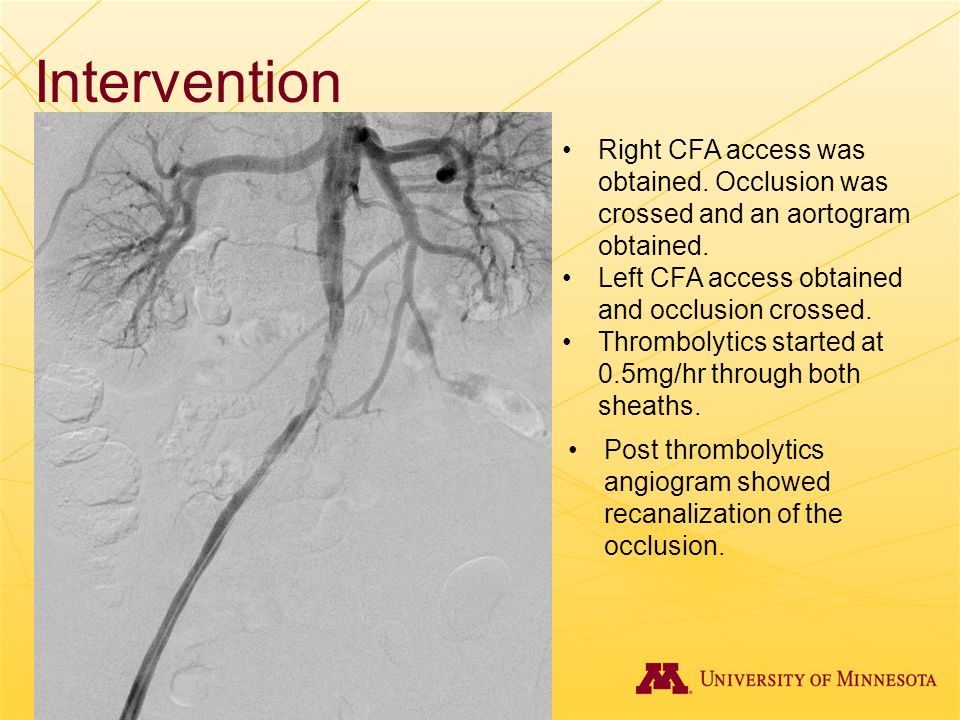 Intervention Right CFA access was obtained. Occlusion was crossed and an aortogram obtained. Left CFA access obtained and occlusion crossed.