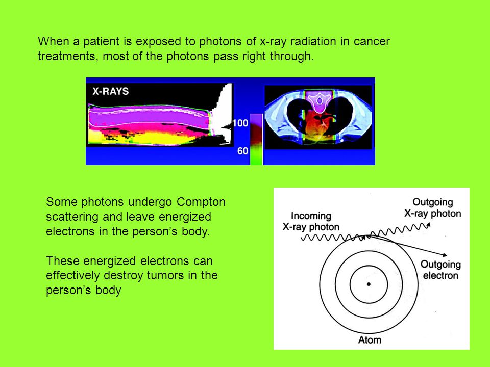 When a patient is exposed to photons of x-ray radiation in cancer treatments, most of the photons pass right through.