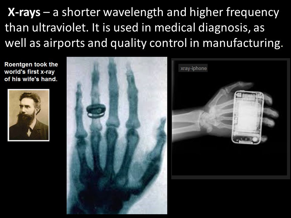 X-rays – a shorter wavelength and higher frequency than ultraviolet