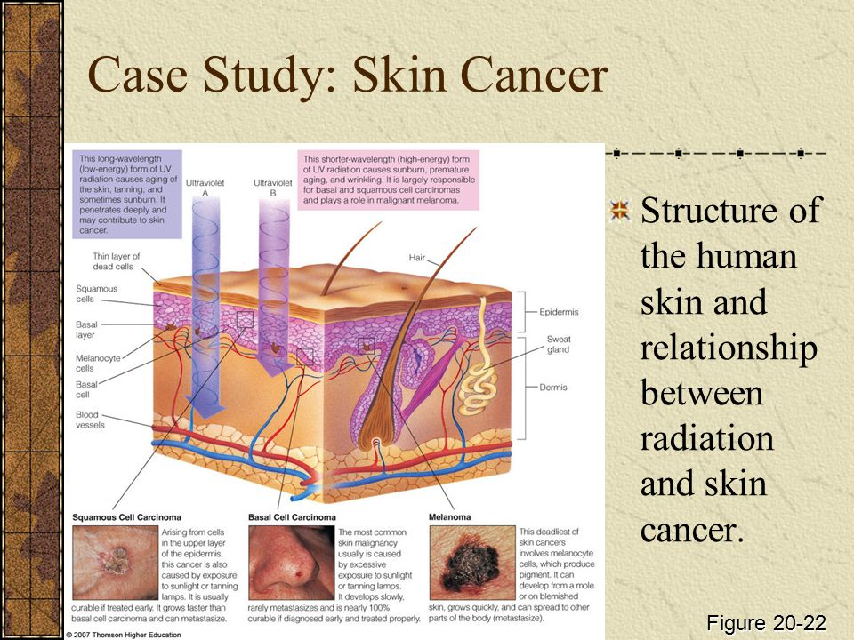 Case Study: Skin Cancer