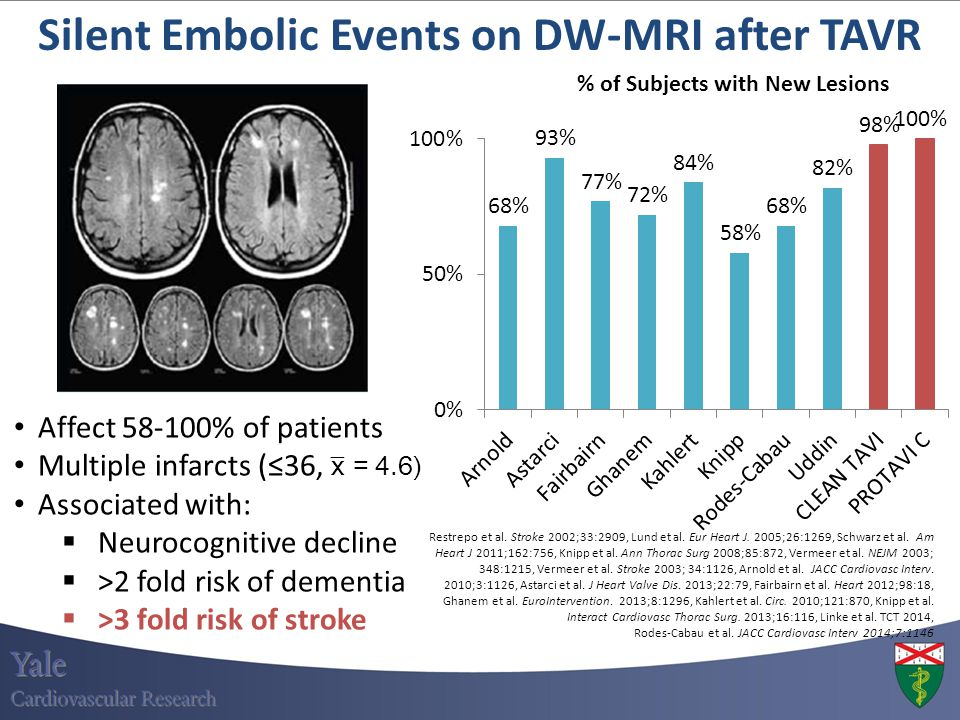 Silent Embolic Events on DW-MRI after TAVR