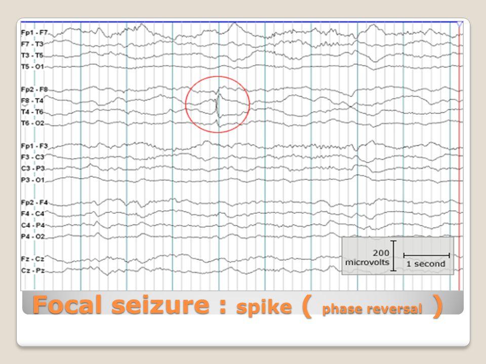 Focal seizure : spike ( phase reversal )