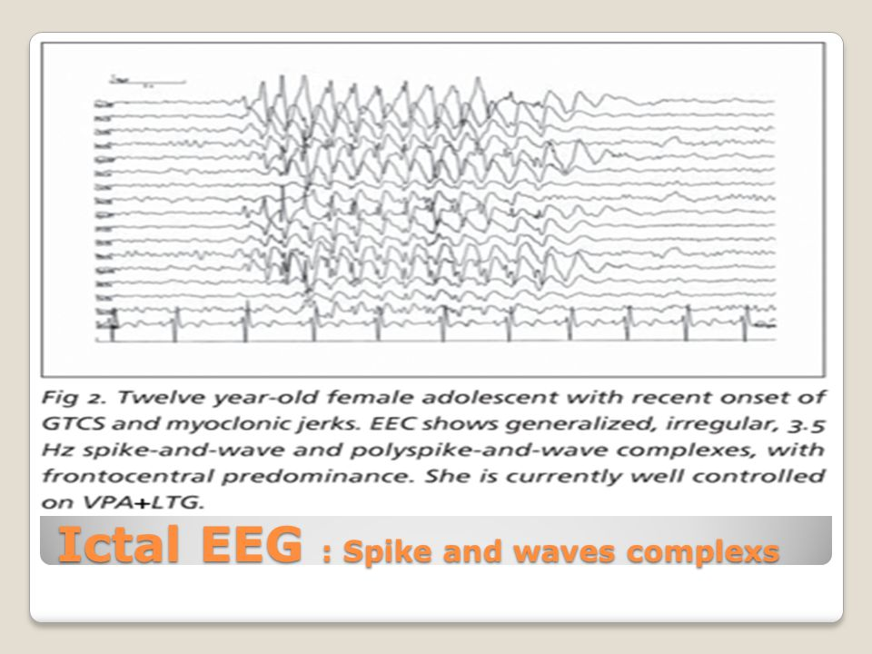 Ictal EEG : Spike and waves complexs