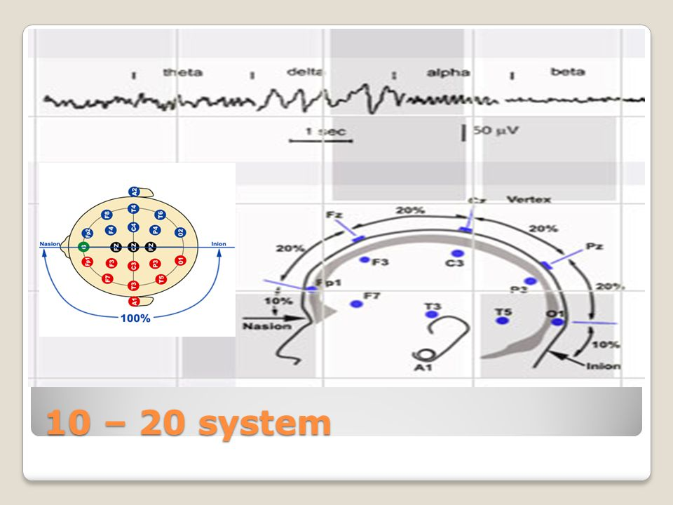 10 – 20 system