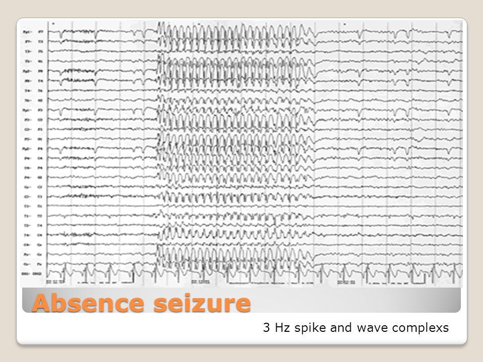 Absence seizure 3 Hz spike and wave complexs