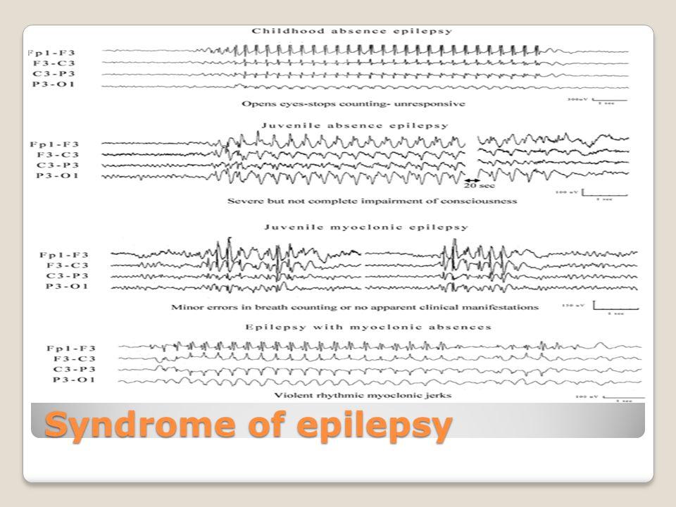 Syndrome of epilepsy