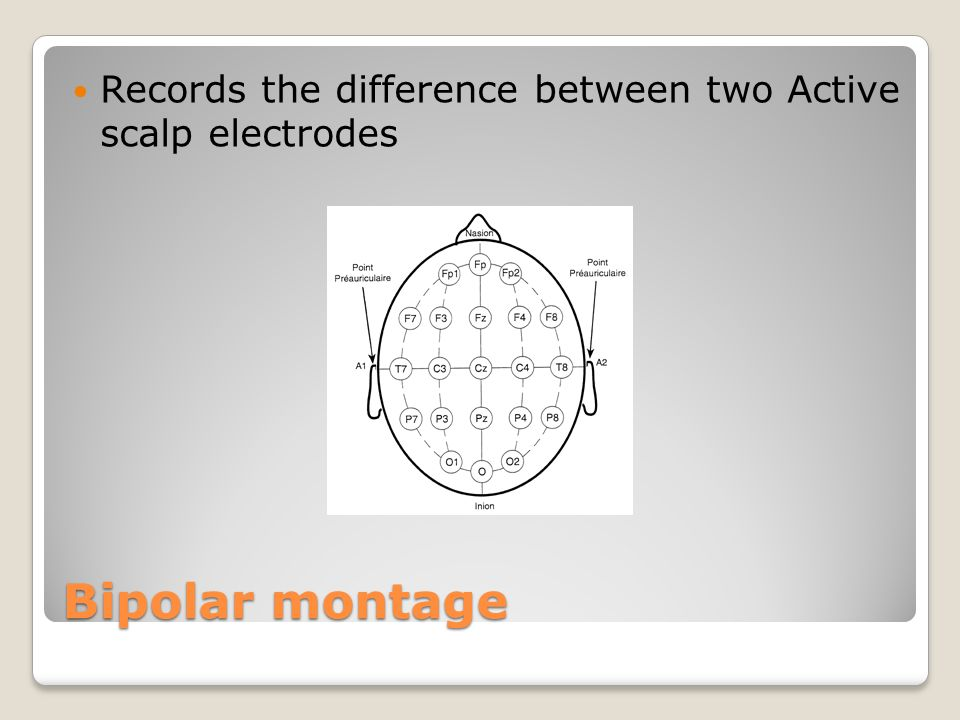 Records the difference between two Active scalp electrodes
