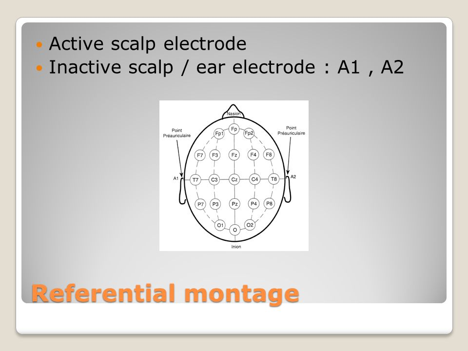 Referential montage Active scalp electrode