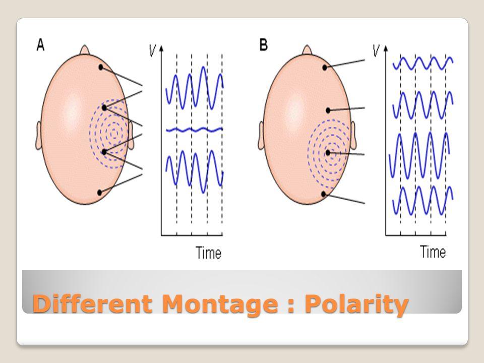 Different Montage : Polarity